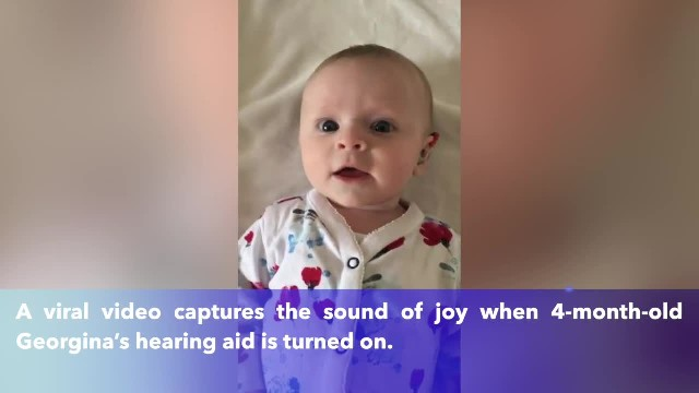 Adorable baby born deaf squeals with joy when she gets hearing aids
