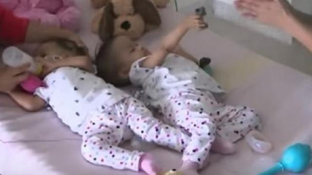 These once-conjoined twins are still inseparable