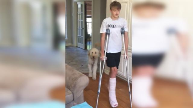 Dog perfectly mocks teenager's broken leg walk