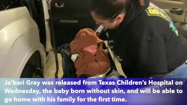 Baby boy born without skin in Texas to be released from hospital