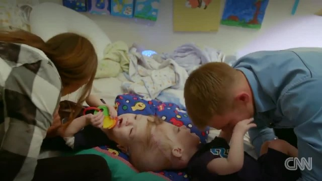Twins joined at head separated after 27-hour surgery, and are growing stronger despite challenges