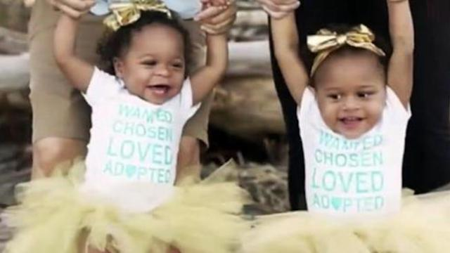 Nurse treats twin infant girls taken to hospital after abuse, adopts them 1-year-later