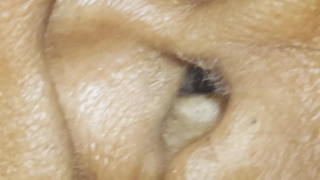 Woman Discovers Her Headaches Have Been Caused By A Spider Living In Her Ear