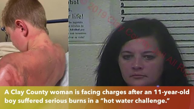Clay County woman arrested after 11-year-old scalded in 'hot water challenge'