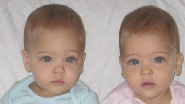 8 years ago they were called the most beautiful twins in the world. Here's what they look today