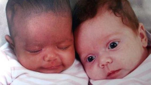 Twins turn different colors Years later, teachers tell mom they