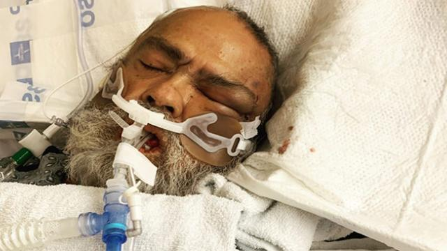 73-year-old California man dies after being severely beaten by his hospital roommate