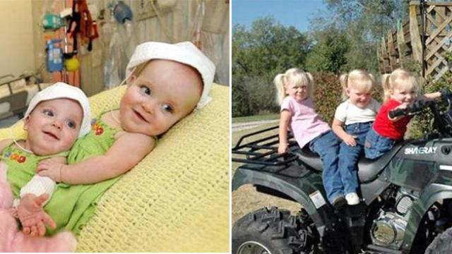 These 3 sisters are the 'rarest triplets in the world'