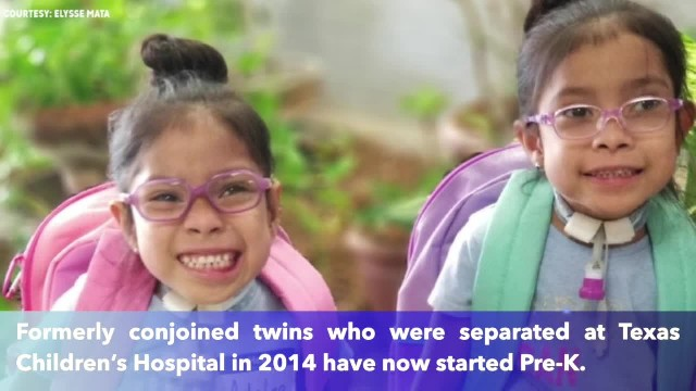 Formerly conjoined twins separated at Texas Children's Hospital mark major milestone
