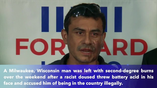 Hispanic man says he was doused with battery acid in racist attack in Milwaukee, Wisconsin