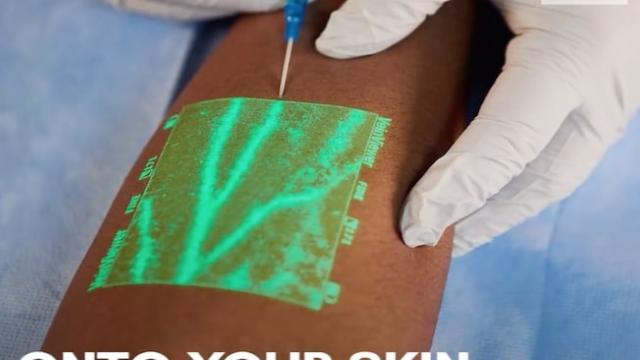 New medical technology helps nurses insert an IV on the first try