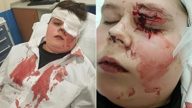 Boy, 15, is nearly blinded when school bully smashes his glasses