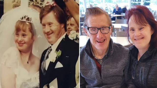Couple with downs just celebrated their 24th wedding anniversary