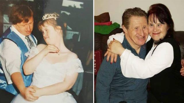 Couple with Down syndrome receive flak for getting married 22
