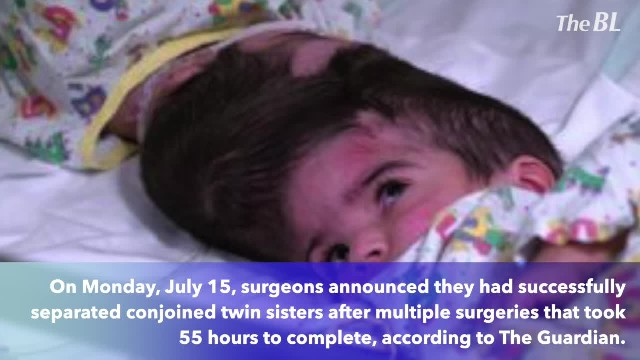 Twins conjoined at the head successfully separated after 55 hours of surgery