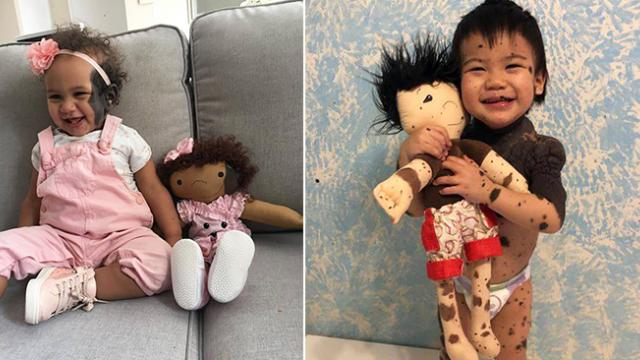 Woman makes dolls to match kids with disabilities & their reactions are so precious