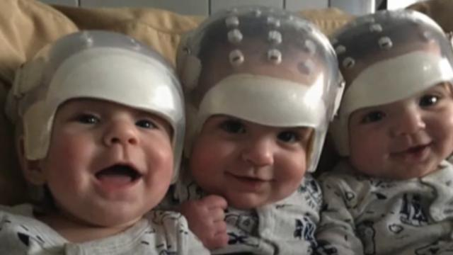 All 3 triplets born with rare birth defect make medical history