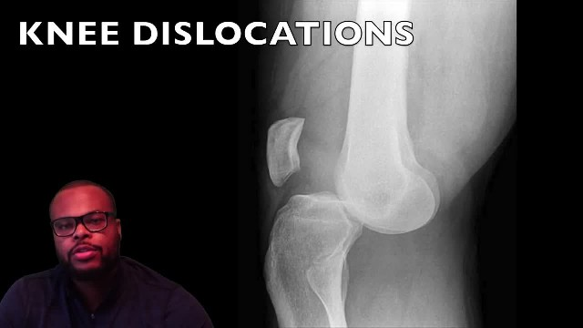 Knee Dislocations - Doctor Explains Gymnast Samantha Cerio's Injury