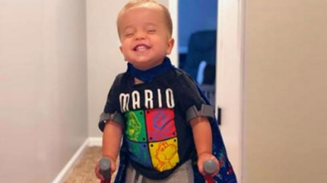 Toddler with spina bifida defies odds and goes viral walking for the first time