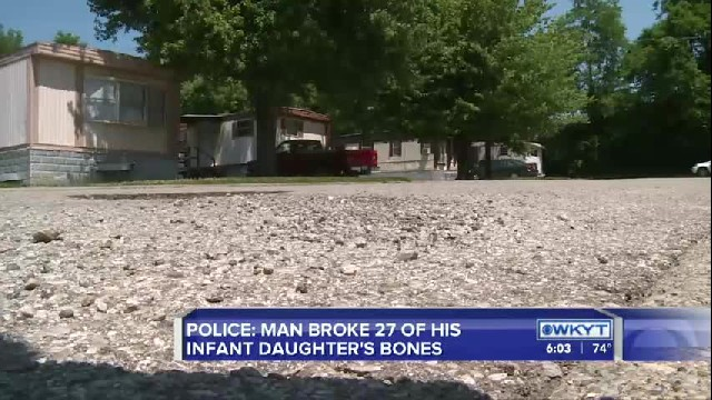 POLICE: MAN BROKE 27 OF HIS INFANT DAUGHTER'S BONES