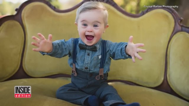 Little boy with Down syndrome officially becomes a model