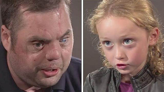 Disfigured veteran with scars says hi to 5-year-old Her response