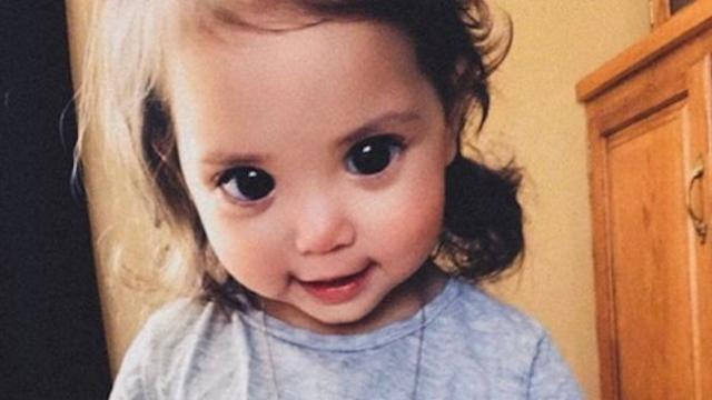 Little girls rare genetic disorder gives her doll-like eyes