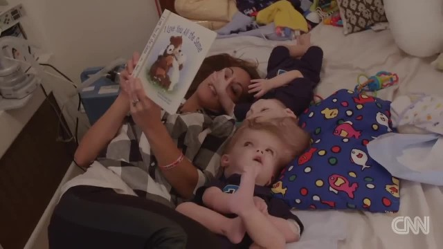 Mom Says Goodbye To Conjoined Twins Moments Before Surgery To Separate Them
