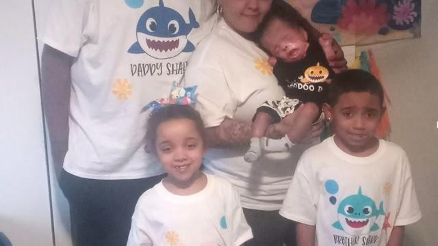 Texas baby born without skin celebrates his first birthday on New Year's day.