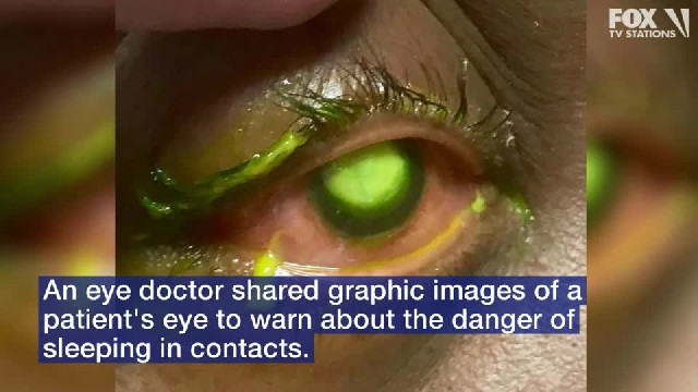 Eye doctor shares graphic photos as warning against sleeping in contact lenses