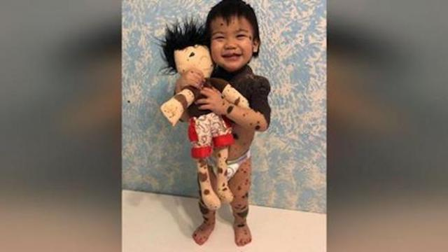 Woman makes dolls to match kids with disabilities & their reactions are so precious.
