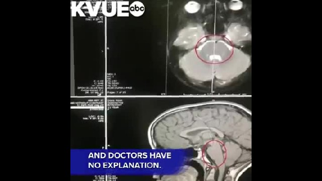 Little Girl's Rare Brain Tumor Leaves Doctors Stumped After It Completely Disappears