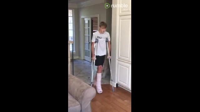 Dog perfectly mocks teenager's broken leg 'walk'