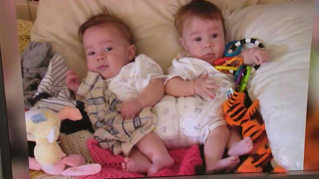 17 Years ago, their parents agreed to a life-threatening surgery. This is what they look like now