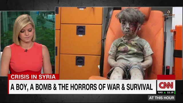 This Child Survived Bombing, His Story Is Horrifying!