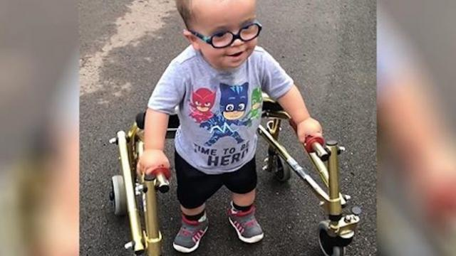 Toddler with spina bifida walks for the first time - inspirational