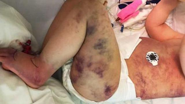 Mom wrongly believes her 3-year-old son got stung by wasp, then his little body turns blue