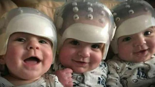 They are the rarest triplets of the world: see how they look today after a historical surgery