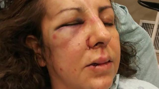 Mother viciously beaten by teen girls while on way to speak with principal about bullying
