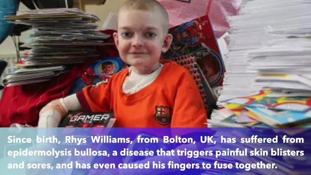 13-year-old boy with agonizing skin condition receives more than 10,000 birthday cards