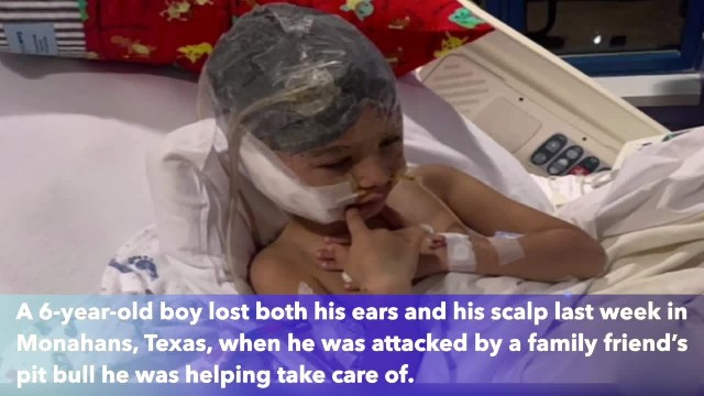 6-year-old Texas boy loses scalp, ears after family friend's pit bull attacks