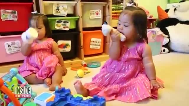 Identical twins with Down syndrome only 18 months old but already have modeling contract