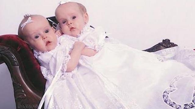 In 2002 these conjoined twins became famous now they're living separate lives and back on TV