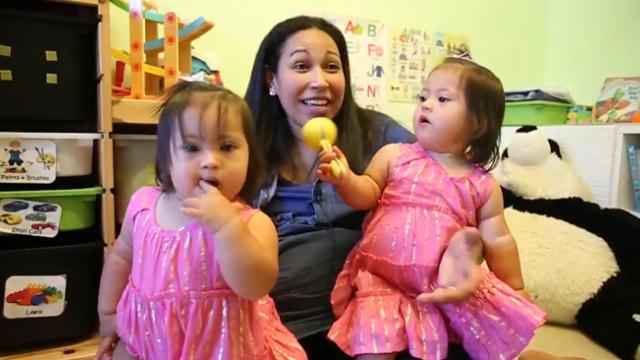 Adorable one-in-a-million identical twins with down syndrome were signed by a modelling agency