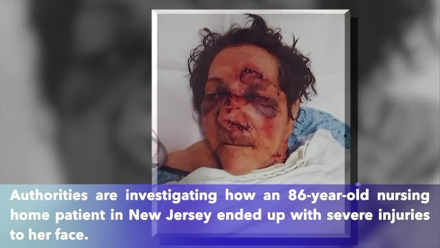 86-year-old woman abused at New Jersey nursing home