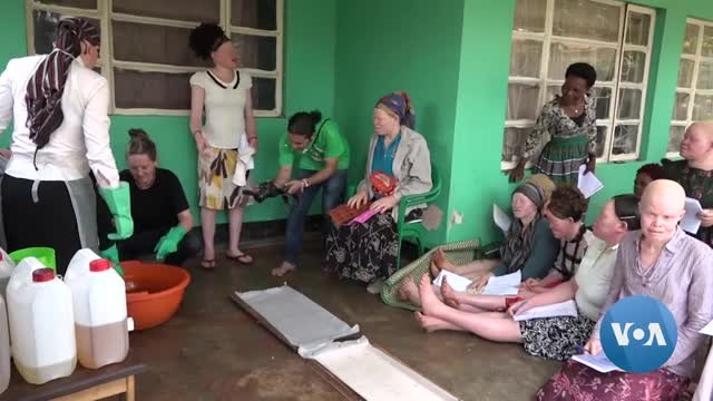 Women With Albinism Struggle to Find Work
